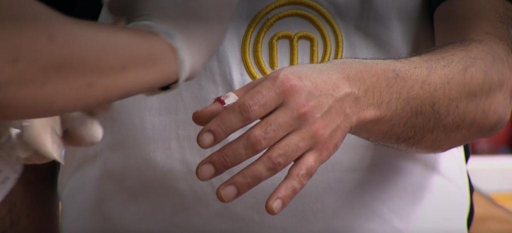 """El accidente de Álvaro López en la cocina en debut de """"MasterChef Celebrity"""""""